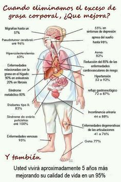 Plano de enfermedades relacionadas con la obesidad.