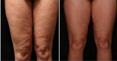How to Get Rid of Cellulite on Legs? How to get rid of cellulite on legs? Home remedies for cellulite on legs. Treat cellulite on legs fast and naturally. Ways to cure cellulite on thighs.