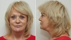 Harley Street Skin Clinic can offer you many different skin care benefits and treatments. Contact us for #Botox or #Facelift #Surgery at our Harley street clinic on 020 7436 4441.