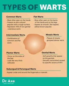 How to Get Rid of Warts Naturally + Wart Symptoms, Causes - Dr. Axe Plantar Wart Removal, Planters Wart, Foot Warts, Types Of Warts, Warts Remedy, Skin Wars, Get Rid Of Warts, Skin Moles, Dr Axe