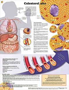 High Cholesterol: Colesterol alto anatomy poster SPANISH (español) anatomy poster defines risk factors and causes of high cholesterol.