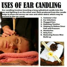 I love ear candling! I got sooooo much wax out doing this Self Massage, Good Massage, Natural Home Remedies, Natural Healing, Skin Care Regimen, Skin Care Tips, Swimmers Ear, Massage Place, Getting A Massage