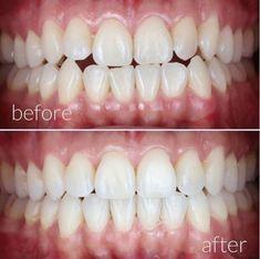 #invisalignsmile #invisalignprovider #regalorthodontics #smilejourney #braces #brackets #transformyoursmile #invisalign #adultbraces #smile #orthodontics #ortho #orthodontist