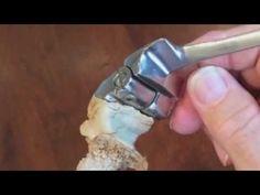 Невероятное чудо сотворения локтевого сустава вместо имплантата - Свидетельства