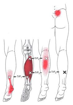 Soleus | The Trigger Point & Referred Pain Guide