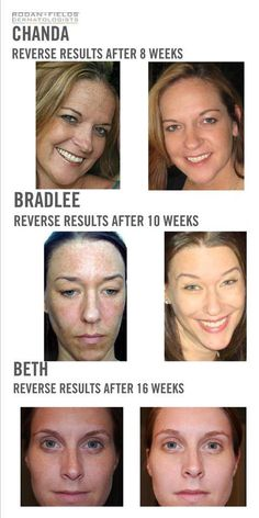 COUNTDOWN to New Year's Skin:   Have a New Year's Resolution for BETTER skin?   60-day empty bottle money back guarantee and 24-hr access to dermatological nurses to answer any questions or address any concerns. Preferred Customers received 10% off & FREE shipping!     YOU deserve the BEST skin of your life!!  Changing Skin   Changing Lives ™