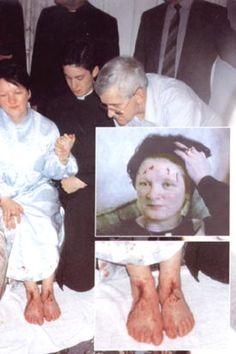 Known Cases of Stigmata | woman with stigmata - stigmata is a Catholic phenomenon