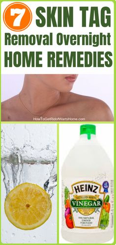 Discover 7 Skin Tag Removal Overnight Home Remedies: Wonder how to get rid of skin tags on eyelid / neck / face / underarm /armpit with simple natural remedies at home? Check out this guide with Videos to learn more on how to remove skin tag with painless Natural Remedies For Arthritis, Natural Cold Remedies, Cold Home Remedies, Skin Tags Home Remedies, Skin Tag On Eyelid, Skin Tags On Face, Molluscum Pendulum, How To Get Rid, How To Remove