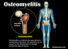 In children, Osteomyelitis usually affects the growth plates. Know the causes, symptoms, treatment and prevention of Osteomyelitis.