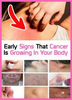 Signs early that your body is growing cancer Moncler, Types Of Ovarian Cancer, Ovarian Cancer Signs, Squamous Cell Carcinoma, Endometrial Cancer, Body Grow, Health And Fitness Articles, Health Fitness, Health Tips