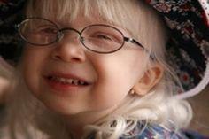 Albinism in Europa