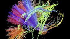 White matter tracts of human brain