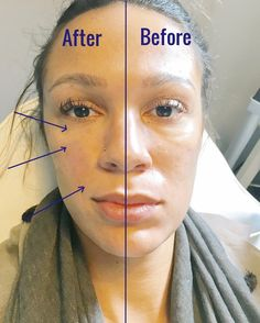 die in jedem Alter helfen before after eyes Skin Care Advice That Will Help At Any Age before after eyes Skin Care Advice That Will Help At Any Age Under Eye Fillers, Cheek Fillers, Botox Fillers, Dermal Fillers, Botox Brow Lift, Eyebrow Lift, Eye Dermal, Forehead Lift, Botox Forehead