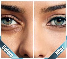 Tips Zone: How To Get Rid Of Dark Circles In 5 Days Naturally At Home