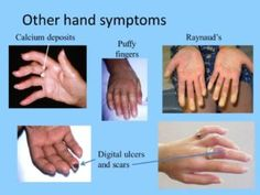pin on scleroderma awareness