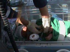 Grávida atropelada dá à luz no meio de cirurgia, no Cabo  Operação foi feita para remover baço, mas ela entrou em trabalho de parto - Uma grávida que foi atropelada precisou ser operada para controlar uma hemorragia e deu à luz durante a cirurgia, realizada no Hospital Dom Hélder Câmara, no Cabo de Santo Agostinho, no Grande Recife, nesta quinta-feira (09). De acordo com o Serviço de Atendimento Móvel de Urgência (Samu), o estado de saúde da mãe e do bebê, um menino, é estável. A mãe fico...