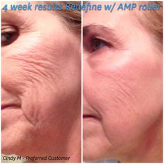 Redefine Regimen, Rodan And Fields Redefine, Amp Roller, Cosmetics Ingredients, Your Skin, Facial, Shop, Facial Care, Facials
