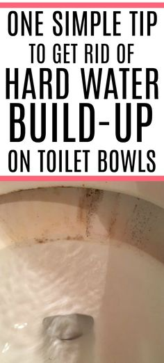 Dealing with hard water stains on toilets? Get rid of those awful toilet bowl stains without scrubbing. Check out how to clean toilet stains like a pro and get your toilet clean again. House Cleaning Tips, Diy Cleaning Products, Cleaning Hacks, Daily Cleaning, Cleaning Solutions, Deep Cleaning, Cleaning Supplies, Homemade Toilet Bowl Cleaner, Cleaners Homemade