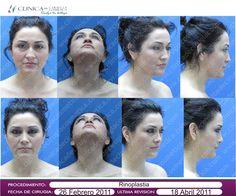 Procedimiento: Cirugía de Nariz  Rinoplastia