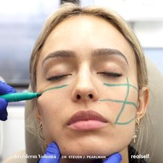 I Chose a Nonsurgical Nose Job Over Rhinoplasty - Cirugia Plastica Dermal Fillers Lips, Cheek Fillers, Fillers For Face, Botox Fillers, Face Treatment, Skin Treatments, Cheek Injections, Relleno Facial, Facial Procedure