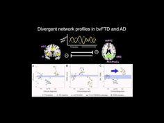 ... reverses memory impairment in Alzheimer's mice | (e) Science News