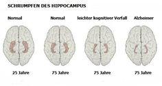 10 wichtige Anzeichen für Alzheimer