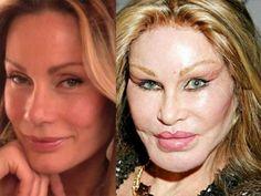 »49 magnifiques stars qui ont vieilli Horriblement