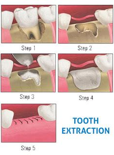 Dental extraction is the removal of a tooth from the mouth. Extractions are performed for a wide variety of reasons including tooth decay that has destroyed enough tooth structure to render the tooth non-restorable. Extractions of impacted or problematic wisdom teeth are routinely performed as are extractions of some permanent teeth to make space for orthodontic treatment. The most common reason for extraction is tooth damage due to breakage or decay. There are additional reasons for tooth…