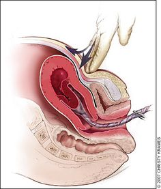 Postpartum hemorrhage: Brandt-Andrews maneuver for cord traction. Firm traction is applied to the umbilical cord with one hand while the other applies suprapubic counterpressure.