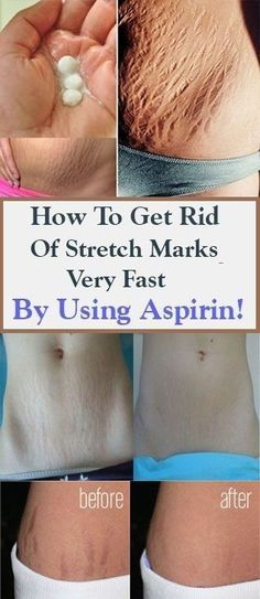 How To Get Rid Of Stretch Marks Very Fast By Using Aspirin - hautpflege Stretch Mark Remedies, Stretch Mark Removal, Stretch Mark Treatment, Scar Treatment, Stretch Mark Prevention, Hair Treatments, Beauty Care, Beauty Skin, Health And Beauty