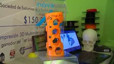 Could 3D printing replace plaster casts?