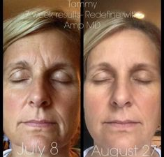 Rodan+Fields Redefine Results are amazing! Look younger now!!!