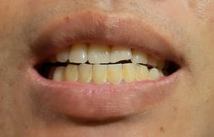 Most people do not have naturally straight teeth due to bad habits or accidents during childhood. Orthodontics can help fixing misaligned teeth Misaligned Teeth, Remover Manchas, Naturally Straight, Health Routine, Oral Hygiene, Orthodontics, Oral Health, Dental Care, Beauty Hacks