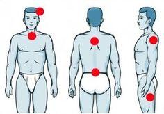 Chronické bolesti, které jsou nervového původu! Podívejte se, zda se to netýká i vás Ronald Mcdonald, Health Fitness, Fictional Characters, Health And Fitness, Gymnastics