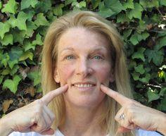 Face Flexing Exercises For Producing A Non-Surgical Facelift