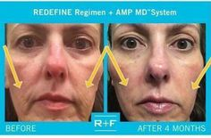 """Is your facial skin sagging after weight loss?  First of all - Woo-Hoo!!! Congratulations on your success!  Second - R+F has something to help. ☺  Meet Lisa: """"I lost 25 pounds and a lot of the weight was in my cheeks. When I finally found my cheekbones, all of my skin was sagging.  Rodan + Fields® was a face saver. These are amazing products.""""   Message me  #RodanandFields #RedefineAmpItUp"""