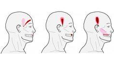 Points puissants pour soulager le mal de tête, acupression contre le mal de tête, soulager les maux de tête avec l'acupression, comment soulager le mal de tête,