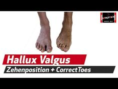 Hallux valgus // Übungen und Tipps zur Selbsthilfe - YouTube