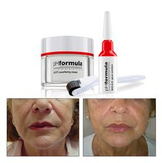 There is special focus on specific problem areas like the delicate eye area as well as the bar code around the mouth area. Natural collagen induction therapy, with a unique M.E.S.O. glow solution is applied to focus on these problem areas, like the delicate eye area as well as the barcode area around the mouth.  The combination of specific acids, retinol, vitamin C, cyto-stim, THPE and peptides has resulted in a miraculous treatment with immediate visible results, leaving the skin radiant…