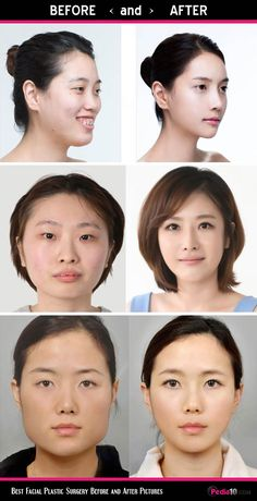 Best Facial Plastic Surgery Before and After Pictures Lip Surgery, Eyelid Surgery, Botox Eyes, Beauty Spa, Beauty Hacks, Botched Plastic Surgery, Face Fillers, Botox Before And After, Botox Injections