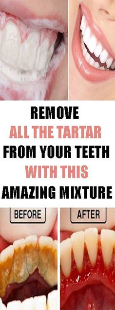 REMOVE ALL THE TARTAR FROM YOUR TEETH WITH THIS AMAZING MIXTURE