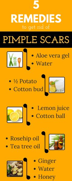Some amazing home remedies to get rid of pimple scars naturally ., Beauty, Some amazing home remedies to get rid of pimple scars naturally Home Remedies For Acne, Acne Remedies, Natural Remedies, Cold Remedies, Health Remedies, Homeopathic Remedies, Pimple Scars, Acne Scars, Acne Skin