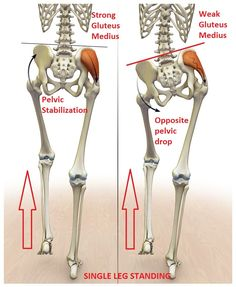 Prevalence of Gluteus Medius Weakness with Nonspecific Low Back Pain Brent Brookbush Muscle Imbalance, Gluteus Medius, Yoga Anatomy, Human Anatomy, Back Pain Exercises, Scoliosis Exercises, Medical Anatomy, Muscle Anatomy, Physical Therapist