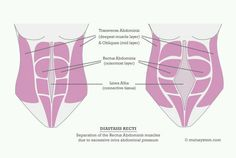 SuperMom : Que es la diastasis de rectos y como recuperarnos?