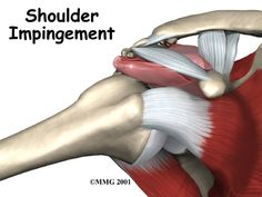 Impingement Syndrome @ Pro Motion Rehab 1787 US Highway 64 West / Murphy, NC 28906 / 828-837-0400 / Fax 828-837-0404 / promotionrehab.com / Blog: promotionrehabedu... / Monday thru Friday 8:30 - 5:30 / Closed for Lunch 12:30 to 1:30 / We are an independent privately owned Physical Therapy provider with 1 location in Cherokee County, NC,