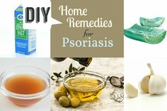 Home Remedies for Psoriasis from the Simplest Treatment to the Other Natural Ingredients