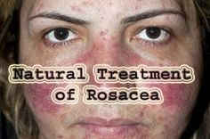 Natural Treatment for Rosacea , Top 7 Remedies for Rosacea....