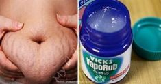 Vaporub is amazing and useful for many things. You won't believe what it can do