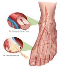 Top Home Remedies For Neuropathy