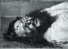 Post-mortem photograph of Rasputin showing the bullet wound in his forehead